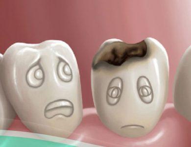 Hôm nay nhổ răng